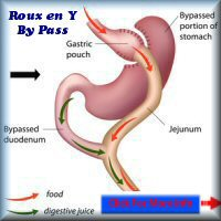 Gastric_bypass